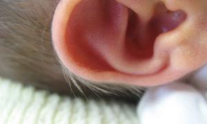 El Oído de Tu Bebé