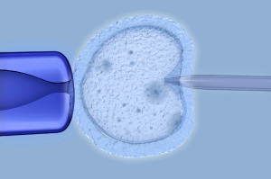 Embarazo multiple inseminacion artificial