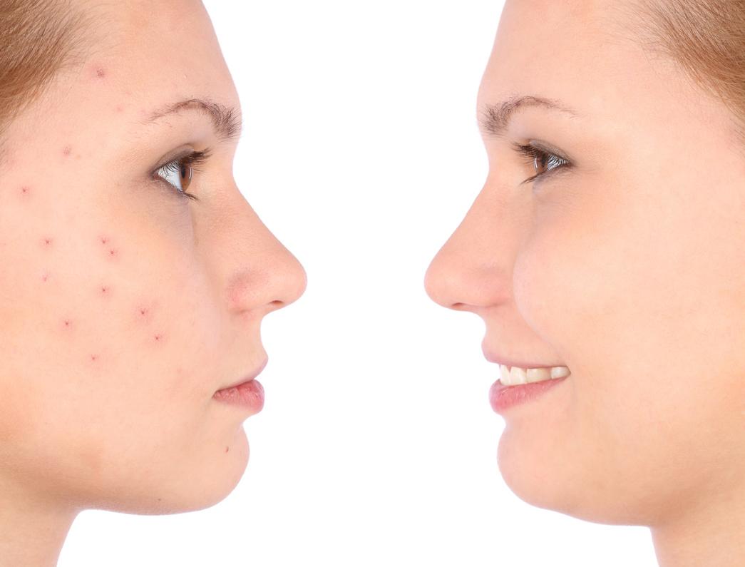 Prevenir la bacteria del acné