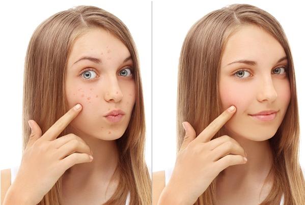Opciones de remedios caseros para el tratamiento del acné: